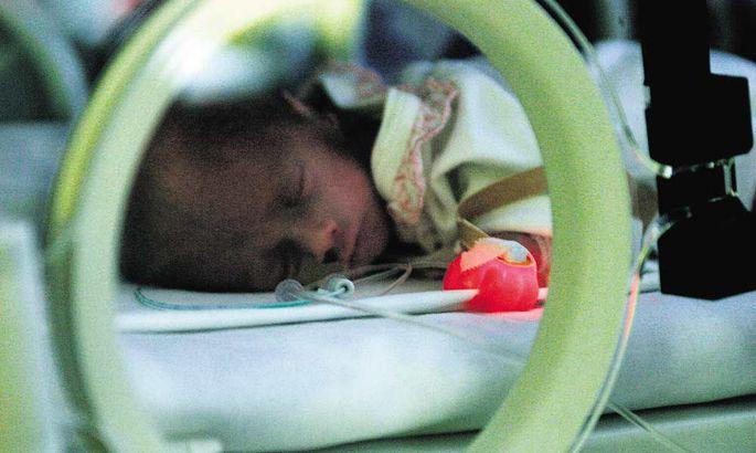 e257fd1eddc Sünniga kiirustanud beebid kosuvad areneva meditsiini toel - Arhiiv ...