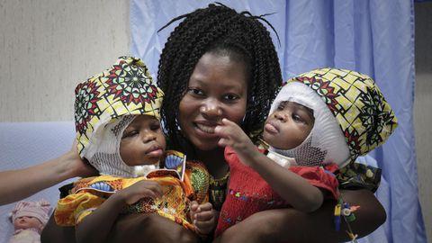 Ema Ermina siiami kaksikute Ervina ja Prefinaga pärast operatsiooni.