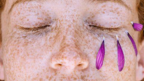 Kas tundlik nahk kandub vanematelt lastele edasi?