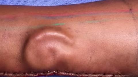 Naisele kasvatati ta enda käe sees kõhrest välja lõigatud kõrv.