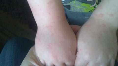 Külmaurtikaaria lapse kätel.