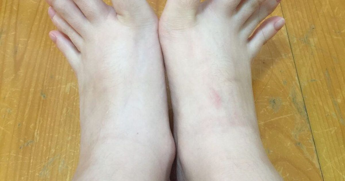 были шайки, зачем просят фото ног такие корни