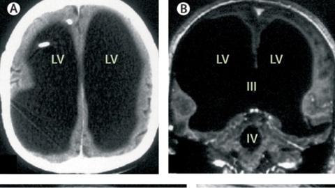 Mustaga on näha aju osa, mis oli täidetud vedelikuga.