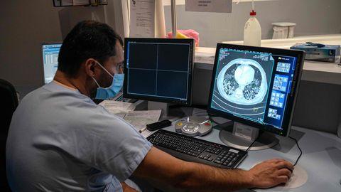 Illustreerival pildil kontrollib radioloog kompuutertomograafia uuringul tehtud pilti koroonapatsiendi kopsudest Emilie-Mulleri haiglas Prantsusmaal (17.11.2020).