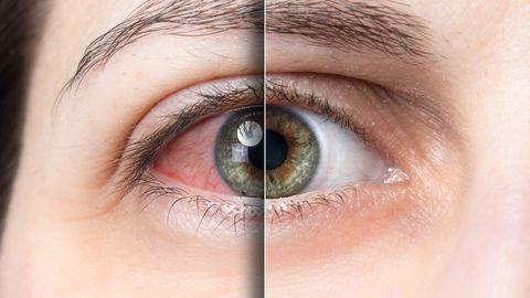 Silmad kipitavad? Just need sümptomid viitavad kuiva silma sündroomile