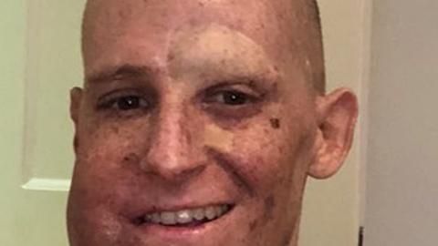 Joshua Barnfatheri keha ei ole võimeline UV-kiirguse tekitatud kahju DNA-s parandama. Mees võitleb näos oleva vähkkasvajaga, millele riiklik haigekassa ravi ei paku.